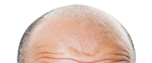 La sal sobre las caídas de los cabello